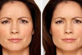 skin tightening, laser resurfacing, cosmetic procedures, chemical peels